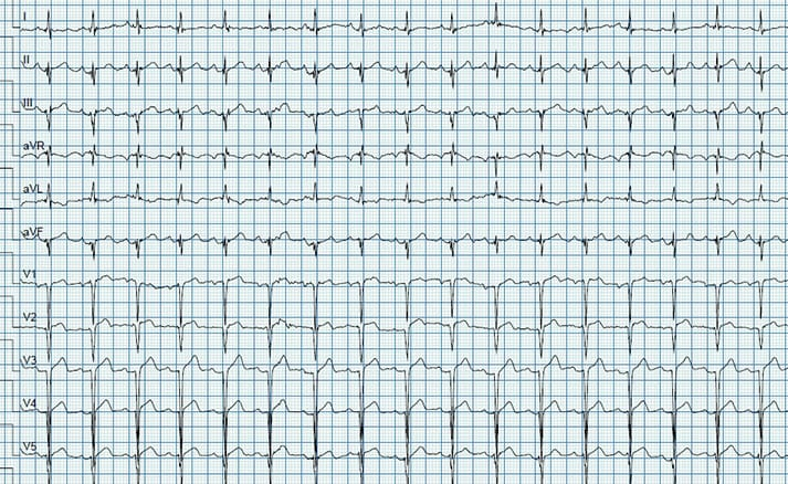 Case Study Acute St Elevation In Regular Stress Test Heartvein Nyc